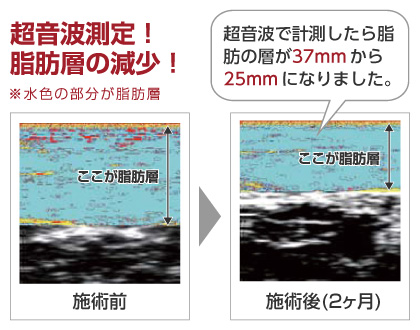超音波測定 脂肪層の減少